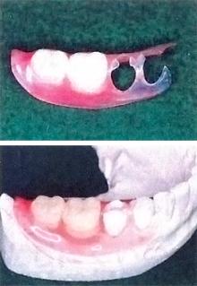 バルプラスト入れ歯について