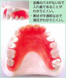 バルプラストの入れ歯とバネ式の入れ歯との比較1