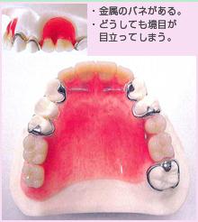 バルプラストの入れ歯とバネ式の入れ歯との比較2